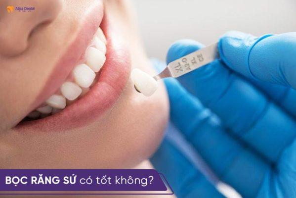 Bọc răng sứ có tốt không, có an toàn cho sức khỏe không? 1