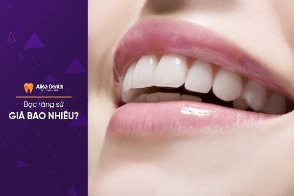 Bọc răng sứ giá bao nhiêu tiền? - Cập nhật bảng giá mới nhất [2019] 4