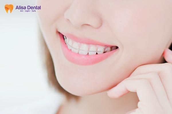 Lý do tại sao cần phải đeo hàm duy trì sau niềng răng? 1