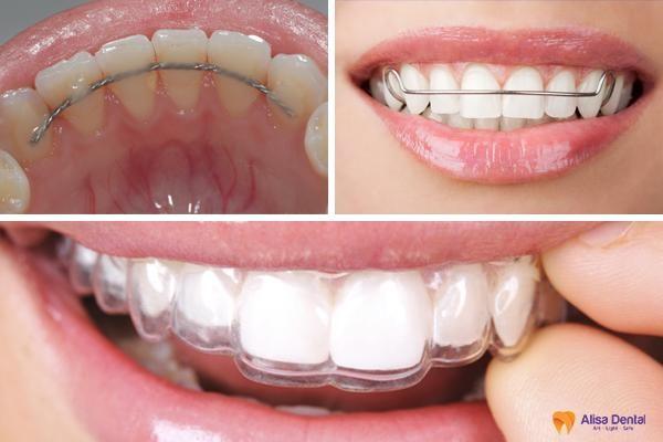 Lý do tại sao cần phải đeo hàm duy trì sau niềng răng? 2