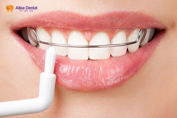Lý do tại sao cần phải đeo hàm duy trì sau niềng răng? 3