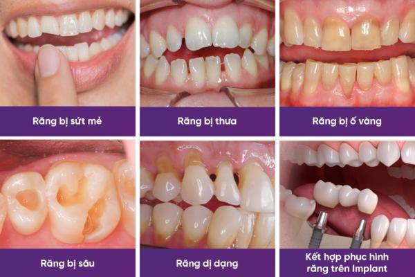 Bọc răng sứ giá bao nhiêu tiền? - Cập nhật bảng giá mới nhất [2019] 3