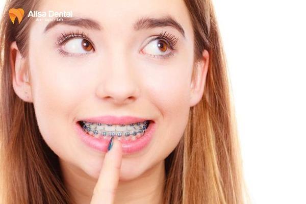 Niềng răng có phải nhổ răng không 4