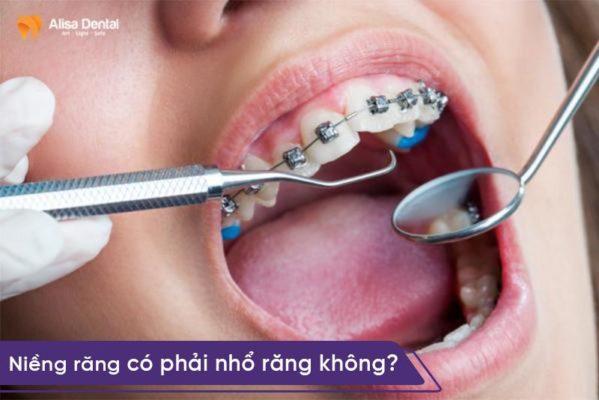 Niềng răng có phải nhổ răng không 1