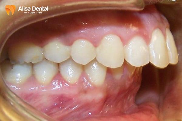 Quy trình niềng răng hô diễn ra như thế nào, cần tuân thủ những bước gì? 1