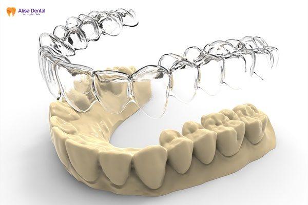 """""""Đừng ham"""" làm máng răng giá rẻ niềng răng nếu không bạn sẽ hối hận! 2"""