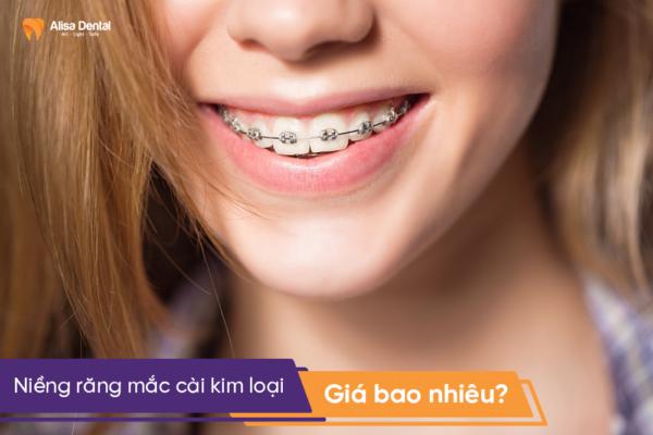 """Niềng răng mắc cài kim loại giá bao nhiêu? - Bảng giá """"ƯU ĐÃI"""" 2019 4"""