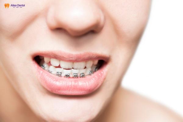 Niềng răng móm giúp cân đối tương quan hai hàm, giúp răng đều đặn hơn
