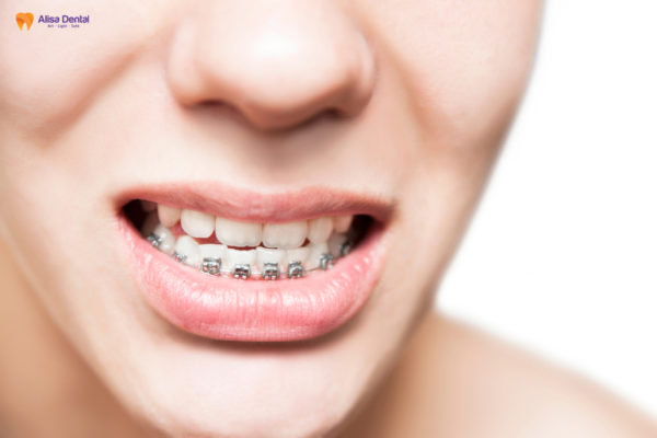 Răng móm 4