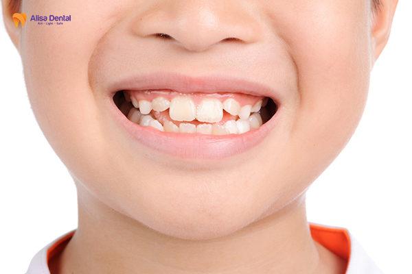 Niềng răng trẻ em có nên không 1