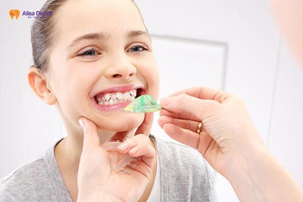 Niềng răng trẻ em có nên không 2