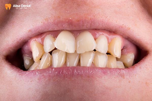 """Niềng răng khấp khểnh mất bao lâu để răng đều đẹp """"như bắp""""? 1"""