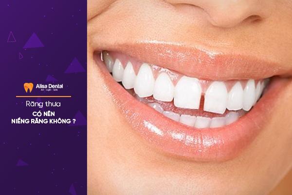Răng thưa có nên niềng răng không, có hết thưa được không? 2