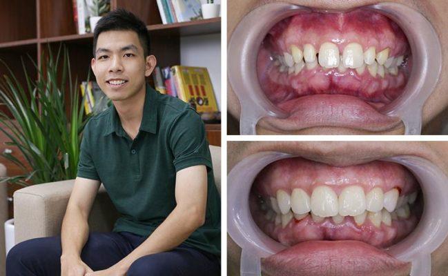 Dán răng sứ Veneer tại Nha khoa Alisa
