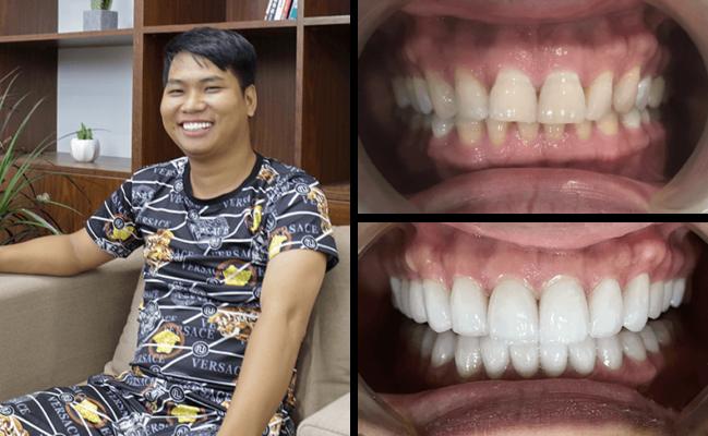 """Quy trình bọc răng sứ - 5 bước """"đúng, chuẩn & an toàn"""" hiện nay 5"""