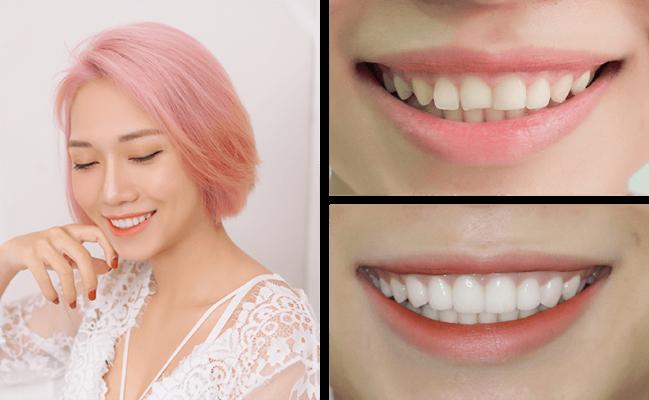 Răng sứ veneer có tốt không 5