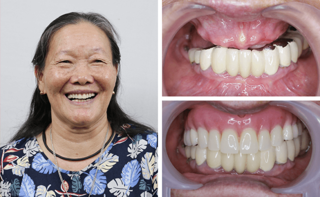 Nha khoa Quốc tế Alisa Dental 5