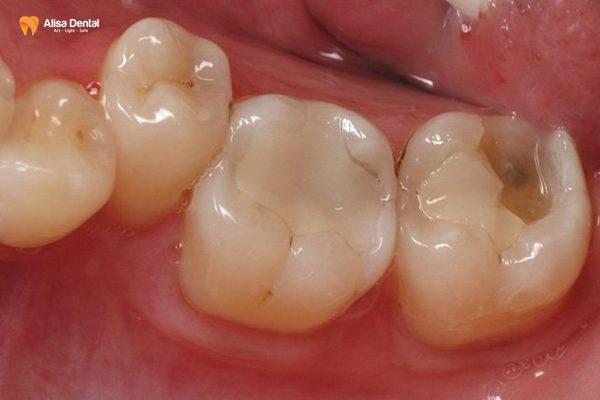 """Hàn trám răng thẩm mỹ - Phương pháp """"tái tạo"""" hàm răng bền đẹp 7"""