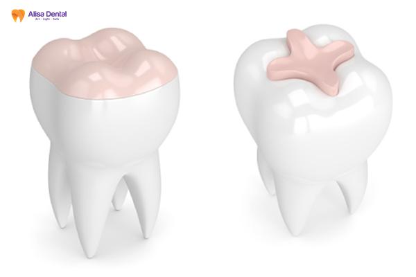"""Hàn trám răng thẩm mỹ - Phương pháp """"tái tạo"""" hàm răng bền đẹp 5"""