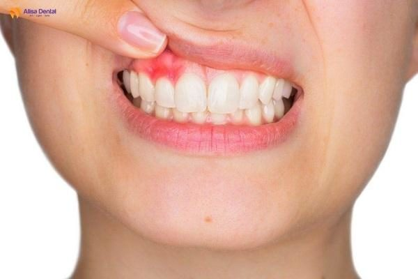 Bọc răng sứ có ảnh hưởng gì không 3