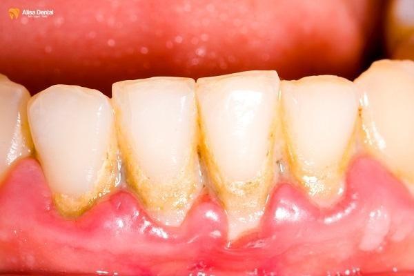 Cao răng hình thành do thức ăn dư thừa và tích tụ lâu ngày trong khoang miệng