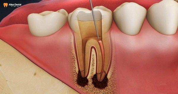 Bạn có thể bị viêm tủy ngược dòng nếu không lấy cao răng