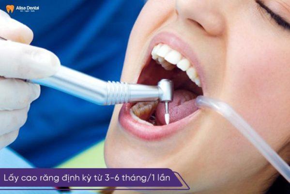Nên lấy cao răng định kỳ tư 3 - 6 tháng/1 lần