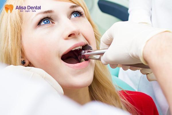 nhổ răng khôn 3
