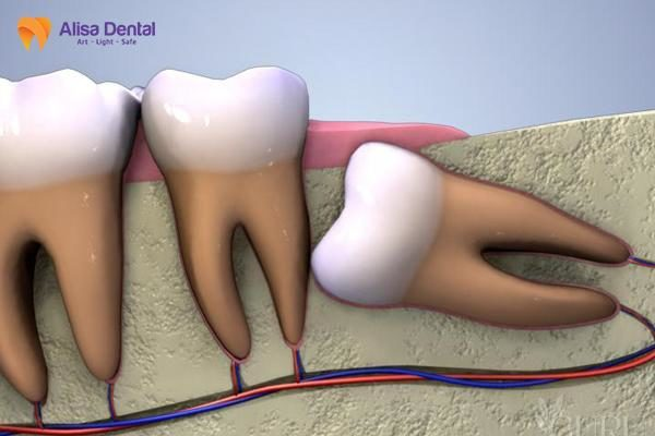 nhổ răng khôn mọc lệch 1