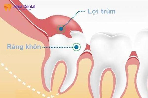 nhổ răng khôn 4