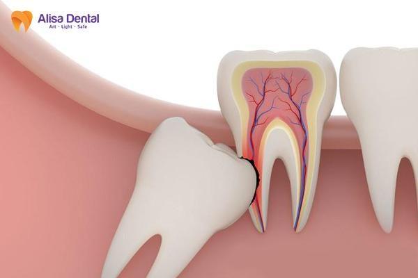 nhổ răng khôn 2