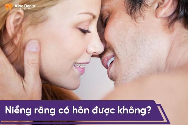 Niềng răng có hôn được không? - Bí quyết để có nụ hôn sâu lãng mạn 1