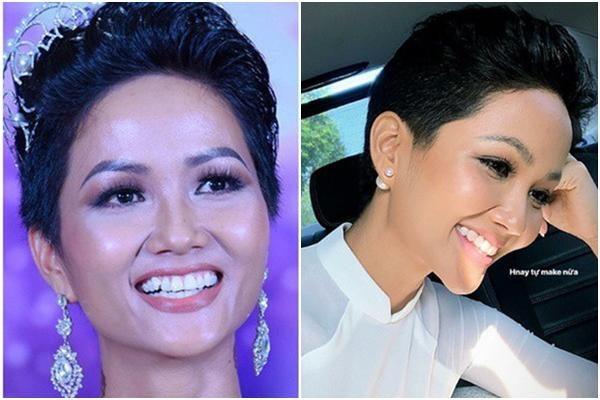 Niềng răng có làm thay đổi không mặt 5