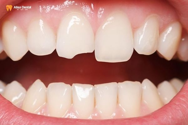 Gãy răng 3