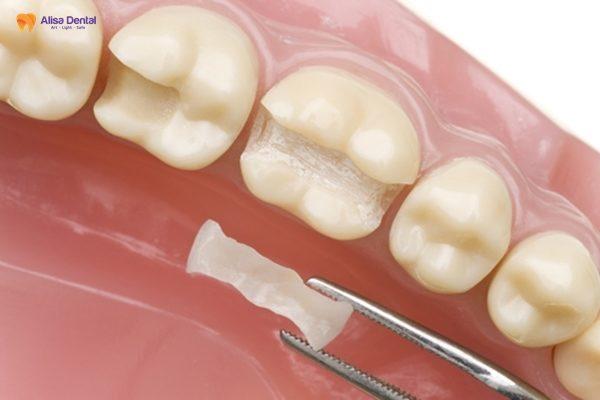 """Hàn trám răng thẩm mỹ - Phương pháp """"tái tạo"""" hàm răng bền đẹp 4"""