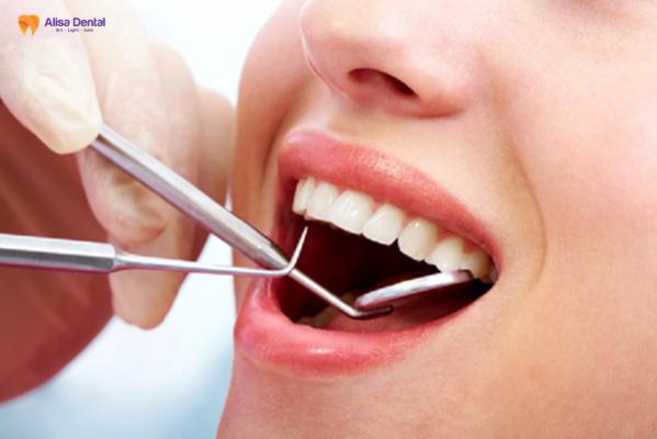 """Hàn trám răng thẩm mỹ - Phương pháp """"tái tạo"""" hàm răng bền đẹp 1"""