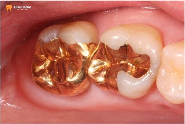 """Hàn trám răng thẩm mỹ - Phương pháp """"tái tạo"""" hàm răng bền đẹp 6"""