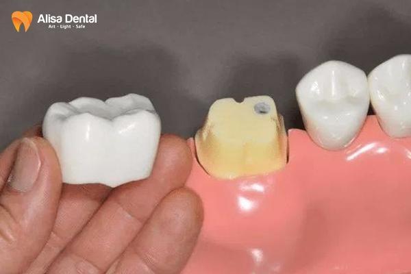 Bọc răng sứ hàm dưới 2