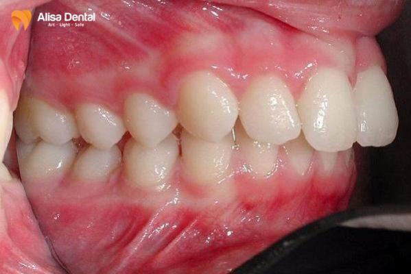 Cách chữa răng vẩu 1