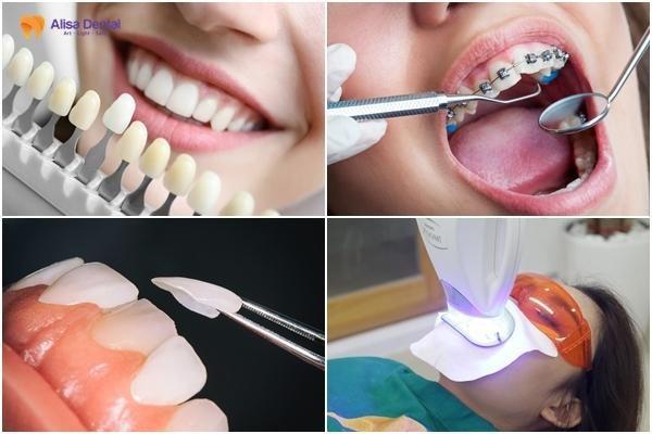 Hàm răng đẹp tự nhiên 5
