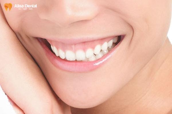 răng hô xấu 1