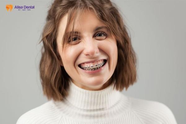 Chi phí chỉnh răng vẩu 3
