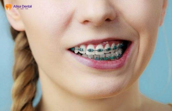 Niềng răng bị lệch 2