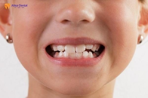 Cách làm răng đều 1