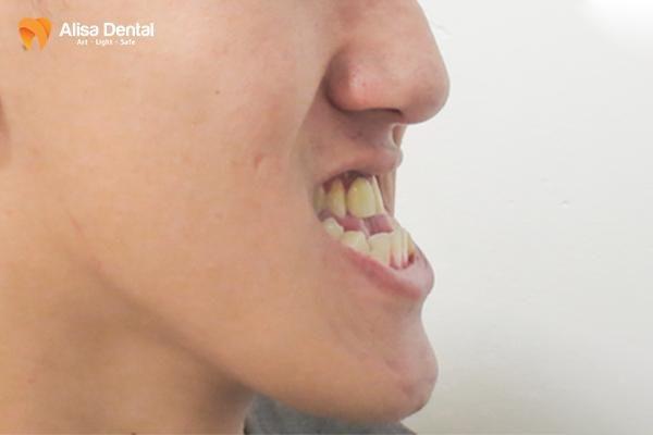 Niềng răng khớp cắn ngược 2