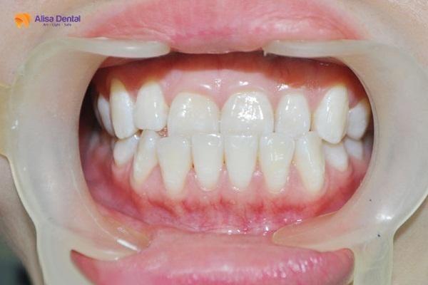 Niềng răng khớp cắn ngược 1