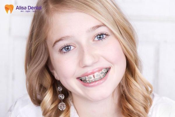 răng cửa thưa 5