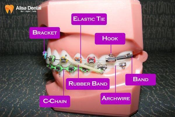 Niềng răng tiếng anh là gì? 2