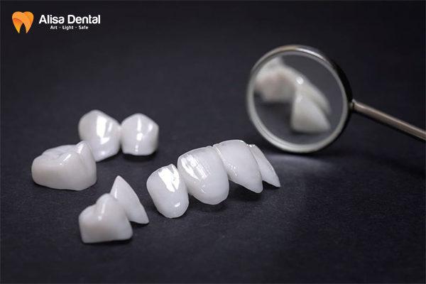 Răng sứ Cercon có mấy loại 1