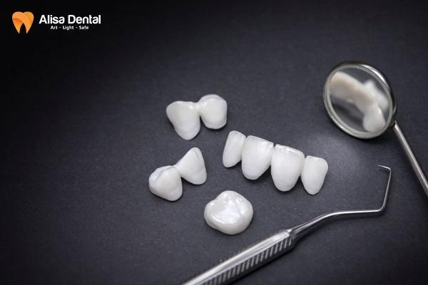 Bọc răng sứ giá bao nhiêu 1 chiếc 1